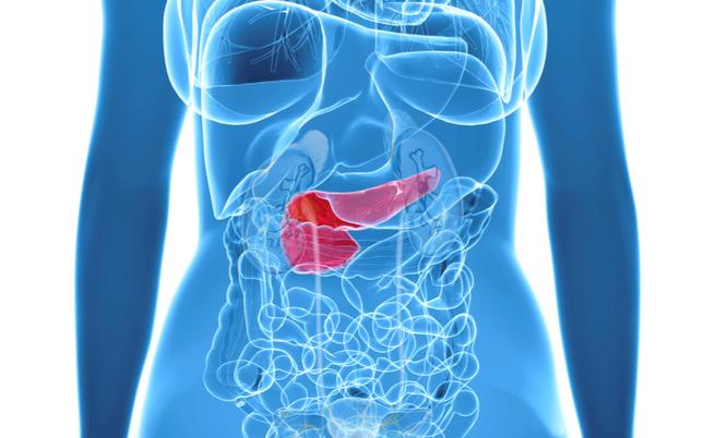 Diagnosi precoce del tumore al pancreas