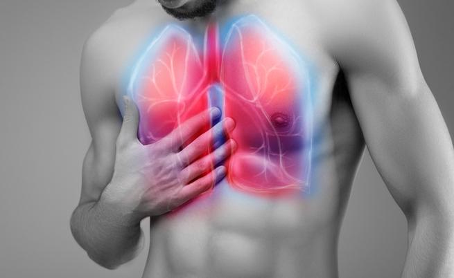 I sintomi della polmonite
