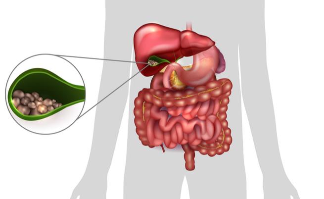 Colecistite: sintomi, cause e complicanze