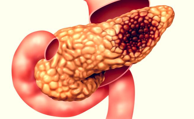 Tumore al pancreas: la sopravvivenza è legata a 4 geni