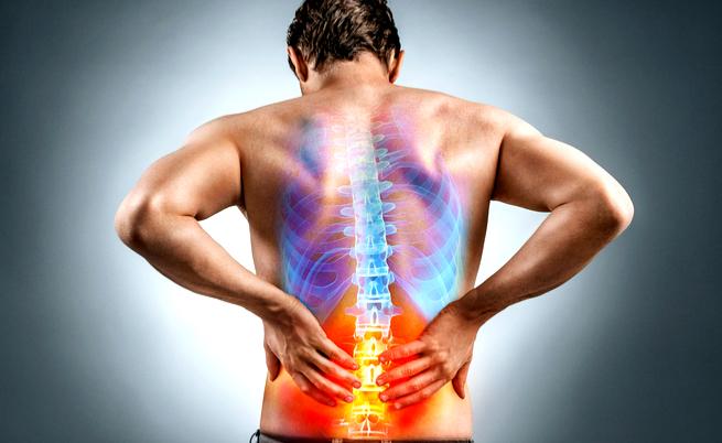Mal di schiena: i rimedi e le posture corrette - Pazienti.it