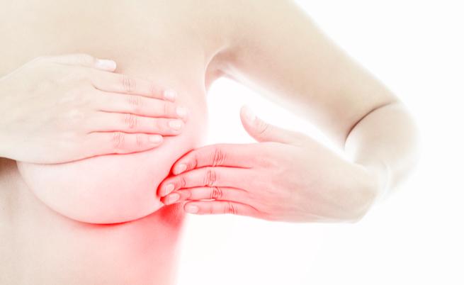 Nodulo al seno: tumore, fibroadenoma, cisti, mastite