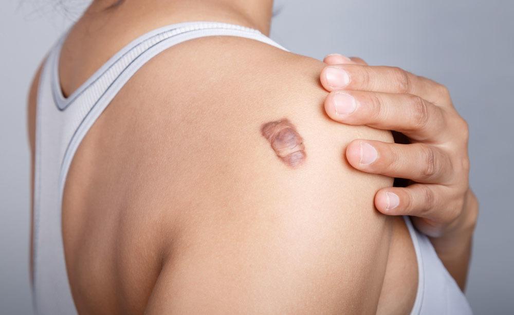 cicatrice ipertrofica: cause e rimedi