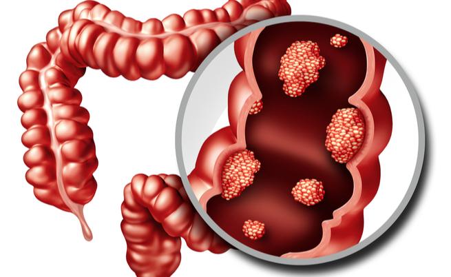 La carne rossa è cancerogena?