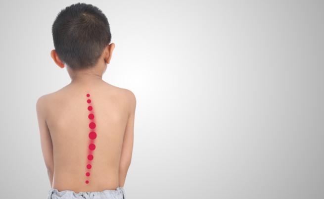 Zaino pesante a scuola: i rischi per la salute