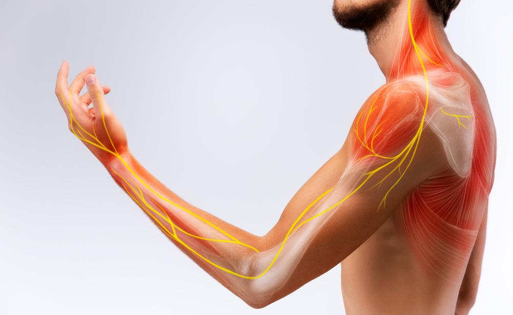 strappo muscolare: i sintomi e le cause