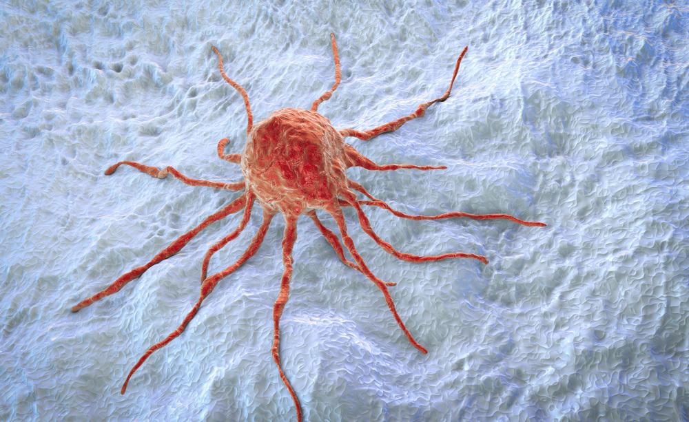 tumore al colon: curarlo