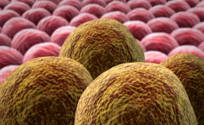 Cos'è un tumore? Ecco le origine e le cause