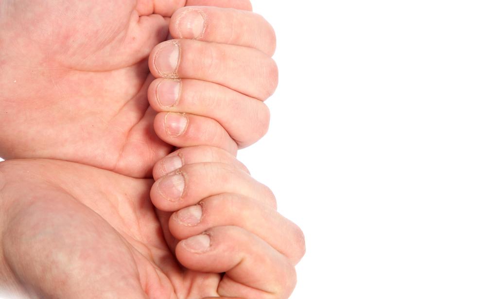 Come smettere di mangiarsi le unghie