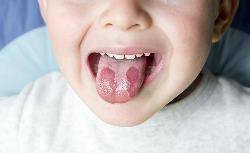 tagli sulla lingua: cause