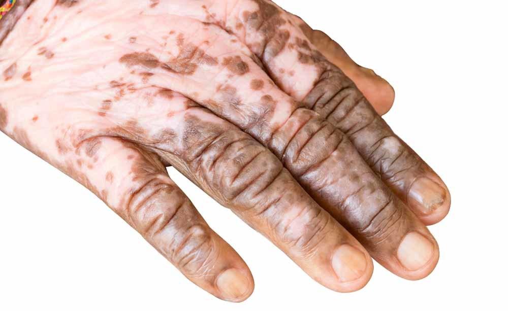 vitiligine: le cause