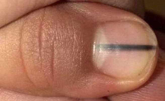Linea nera sull'unghia? Attenzione, potrebbe essere un melanoma ungueale