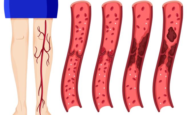 Trombosi venosa profonda: i sintomi, le complicanze e le conseguenze