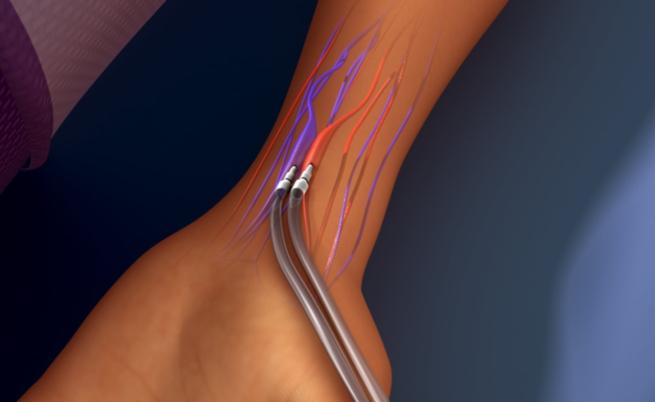 Le complicanze della fistola arterovenosa