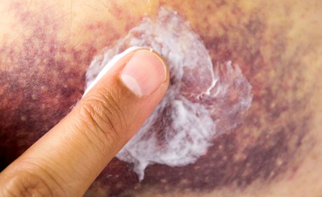 Come curare gli ematomi