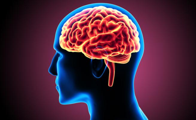 Alzheimer, Parkinson e Huntington sono malattie neurodegenerative con alcuni legami: vediamo quali
