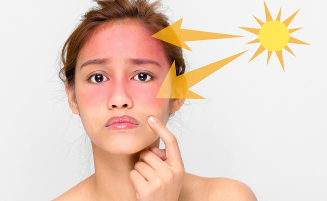 Scottature: ecco i rimedi per alleviare i sintomi del rossore causato dal sole