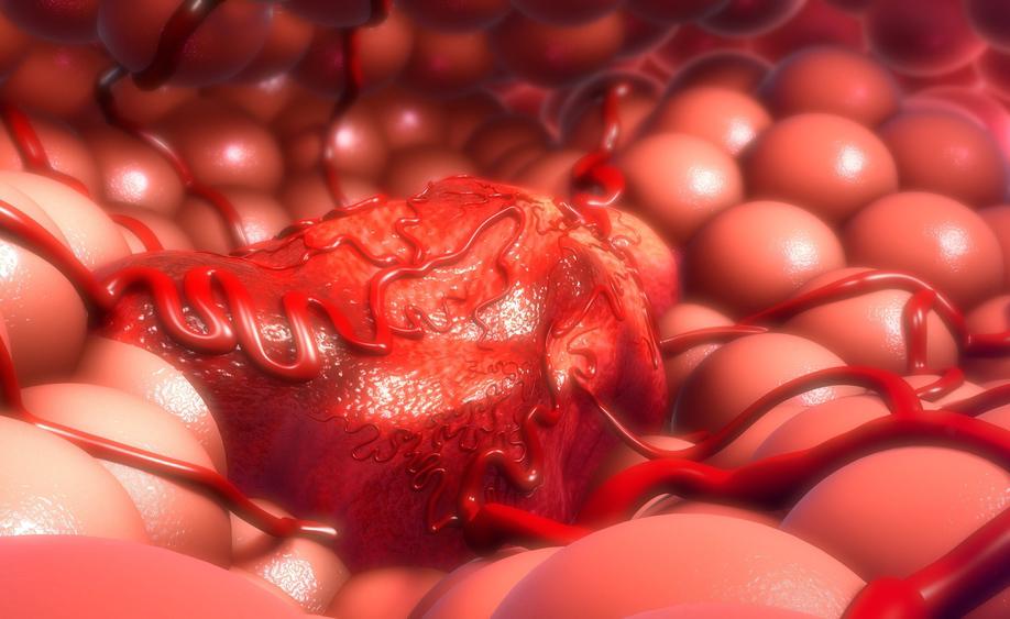 tumore: la diagnosi precoce