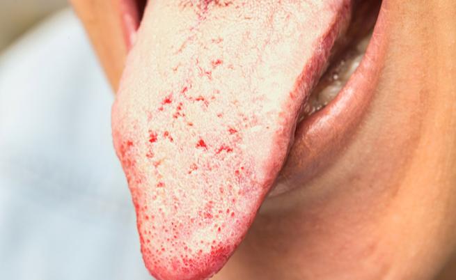 candida orale: sintomi, cause e rimedi naturali