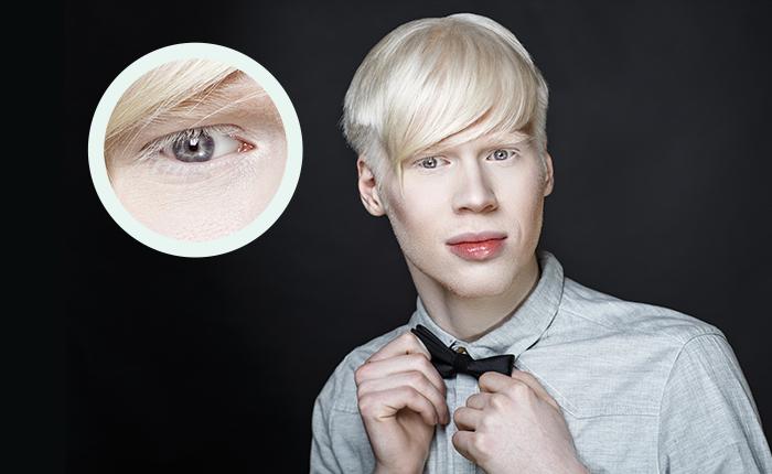 Albinismo oculare: i sintomi e le cause