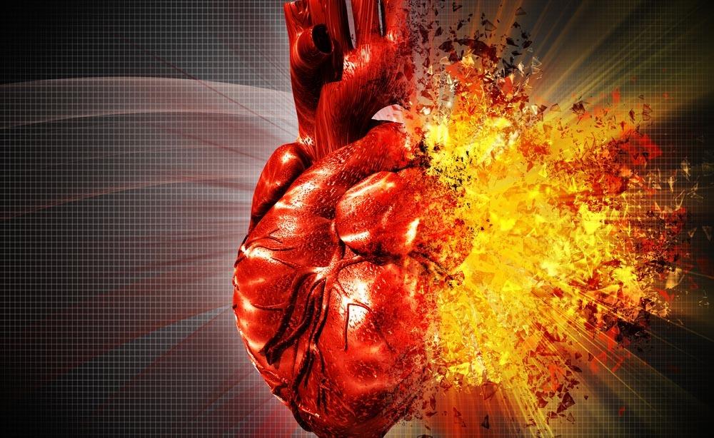 infarto: le cause anche negli effetti dei FANS
