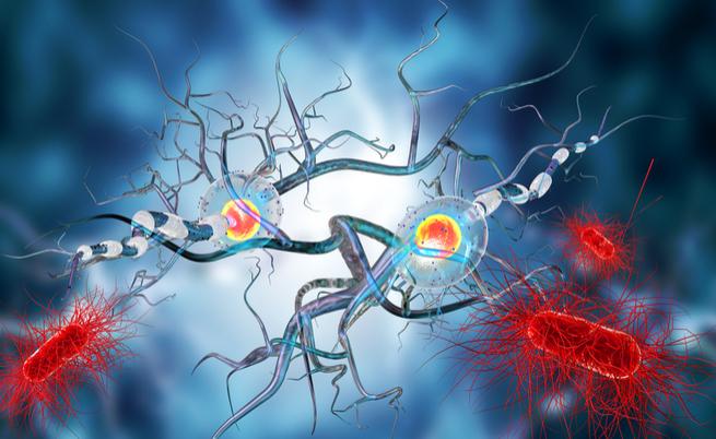 Sclerosi multipla e cellule staminali
