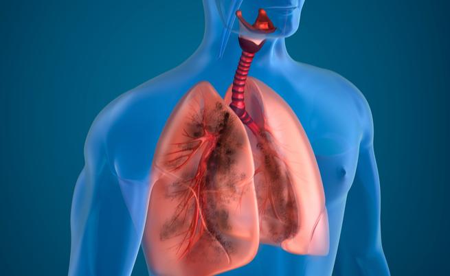 Tumori ai polmoni: ecco una nuova diagnosi