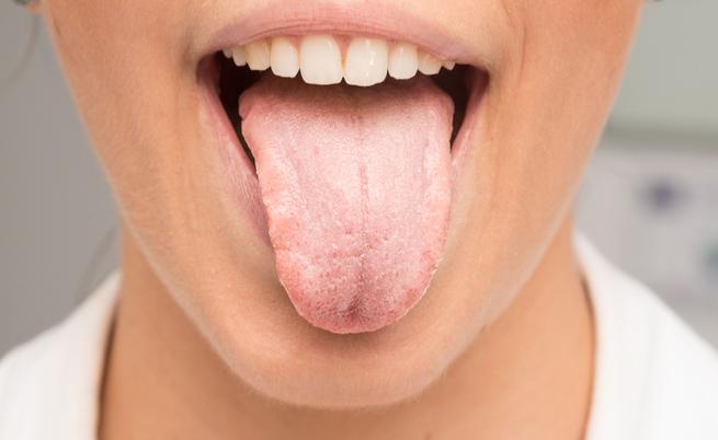 Candidosi orale, come combatterla