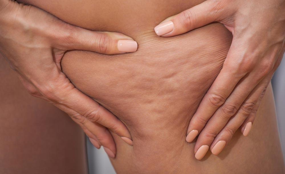 cellulite: i rimedi naturali