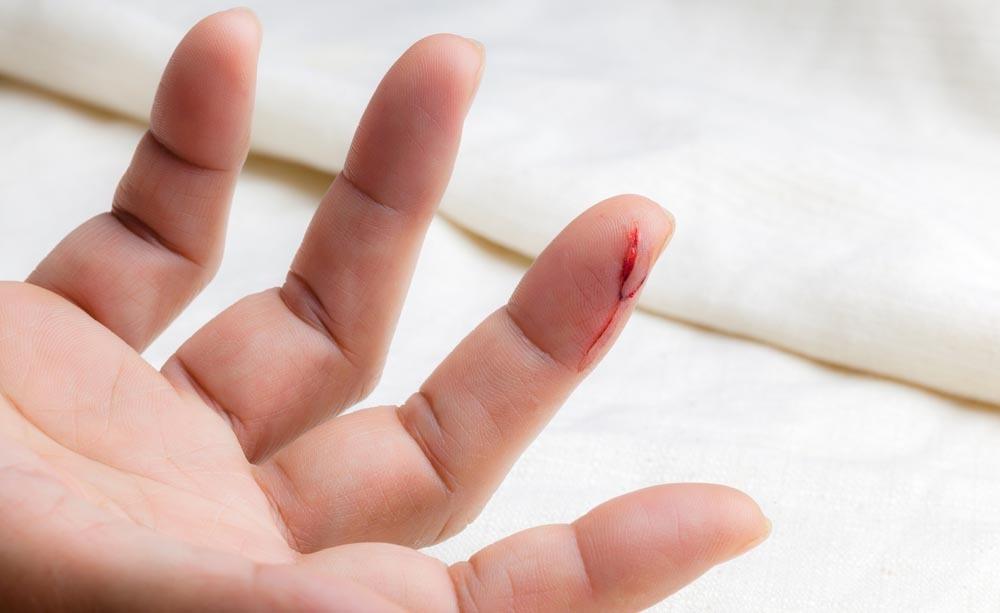 tagli sulla pelle: le cause