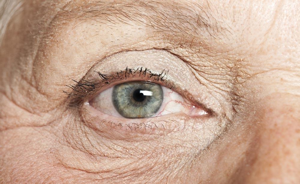 invecchiamento dell'occhio: cosa accade