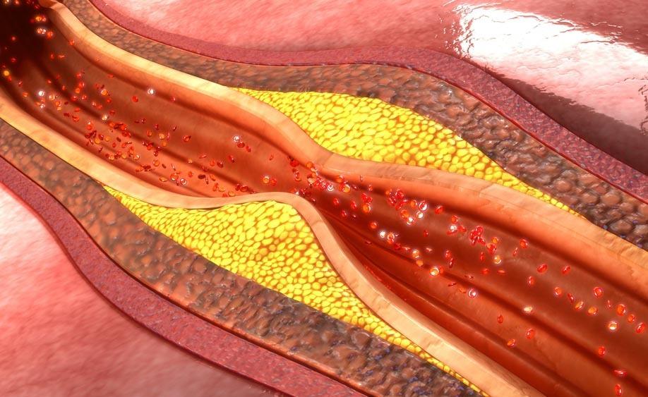grassi saturi e arterie ostruite: cosa c'è da sapere