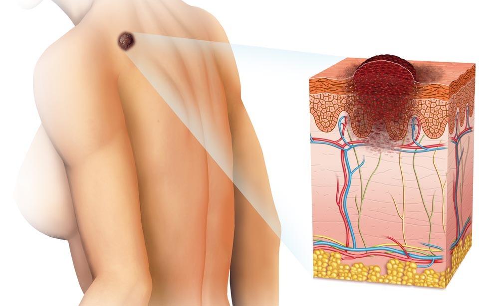 tumore della pelle: come prevenirlo