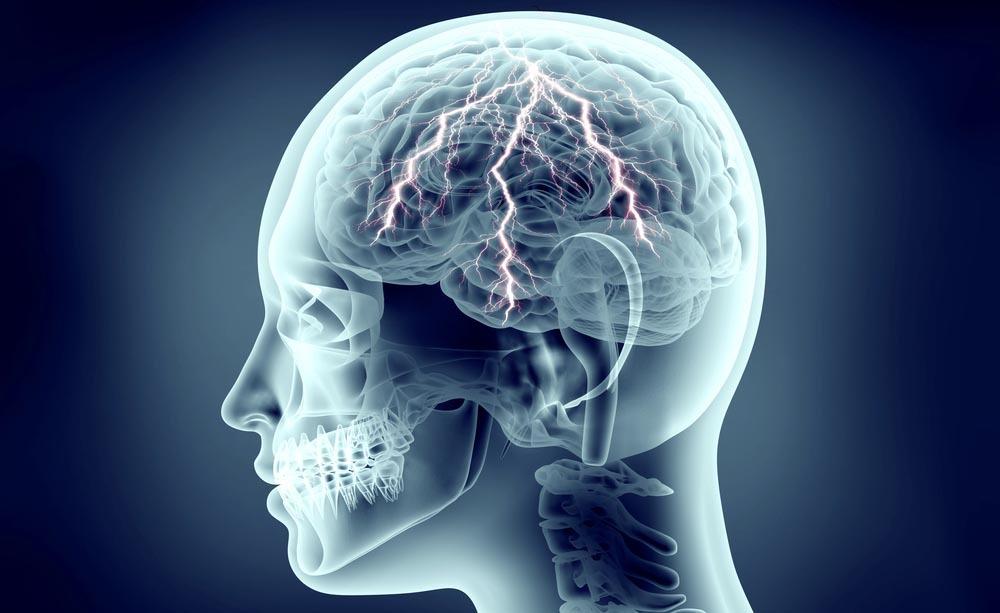 vasi linfatici cerebrali