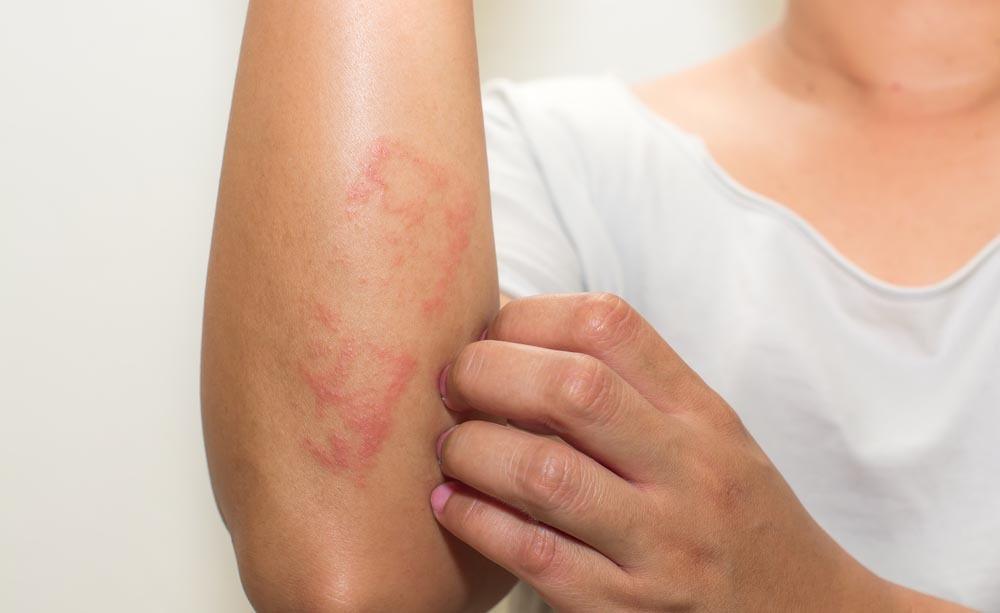 Psoriasi e dermatite seborroica: le differenze