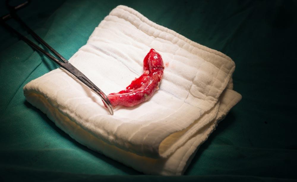 appendice: la funzione di questo organo