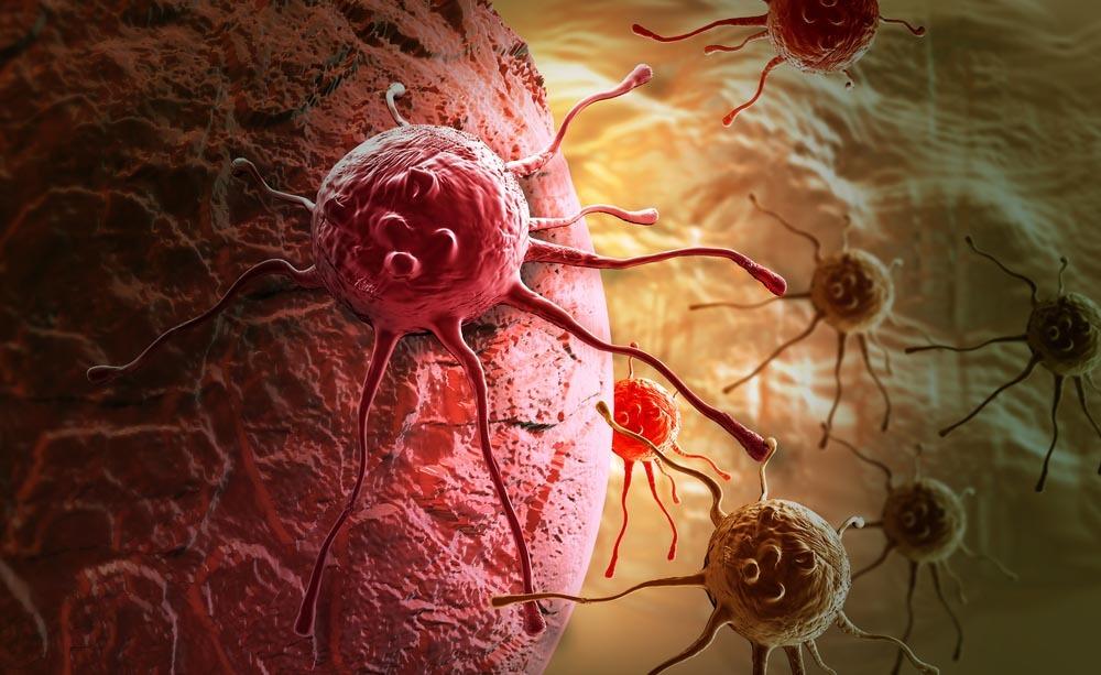 tumore allo stomaco e colon: scoperto un modo per bloccarli
