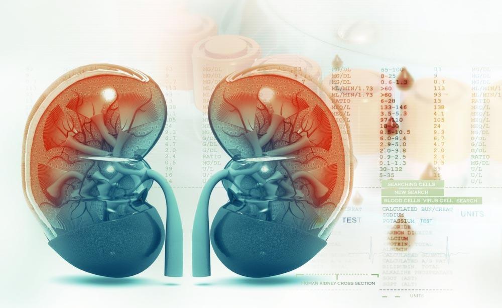 malattia renale cronica: cosa fare per trattare il disturbo