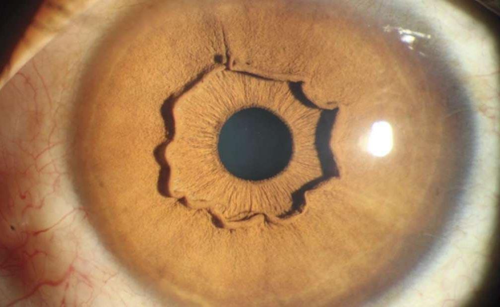 collaretto dell'occhio: la storia di una donna con una anomalia