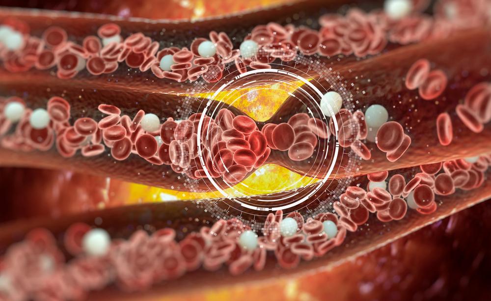 trombosi: i sintomi