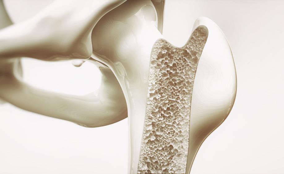 osteoporosi: le cause e come prevenirla
