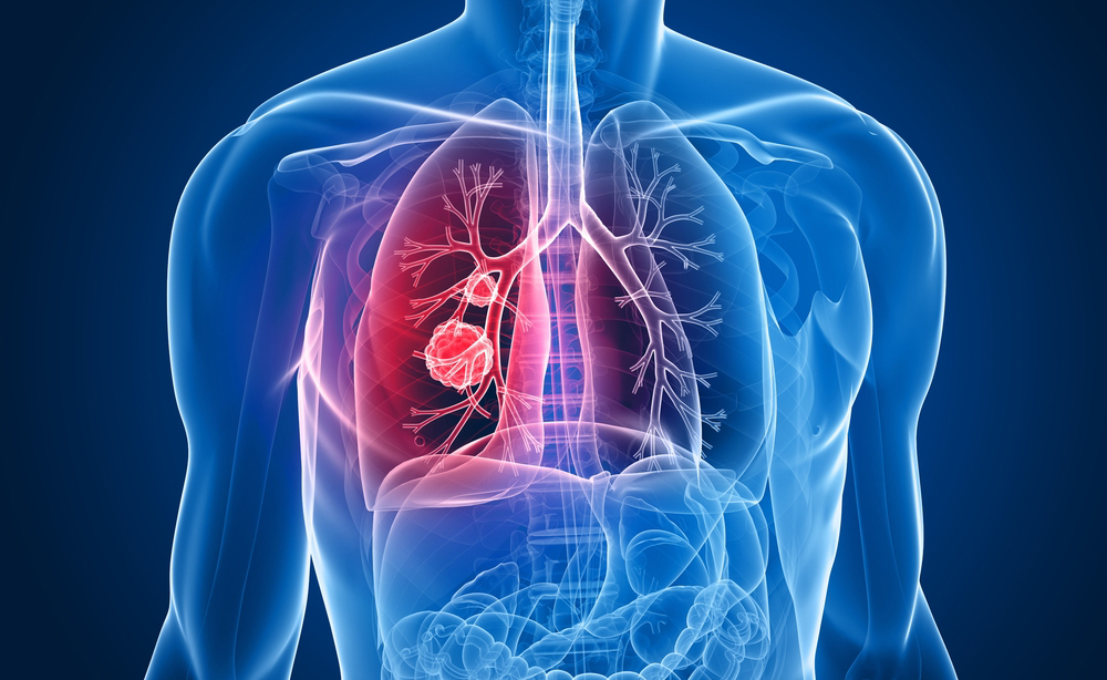 tumore ai polmoni: come boccare le metastasi