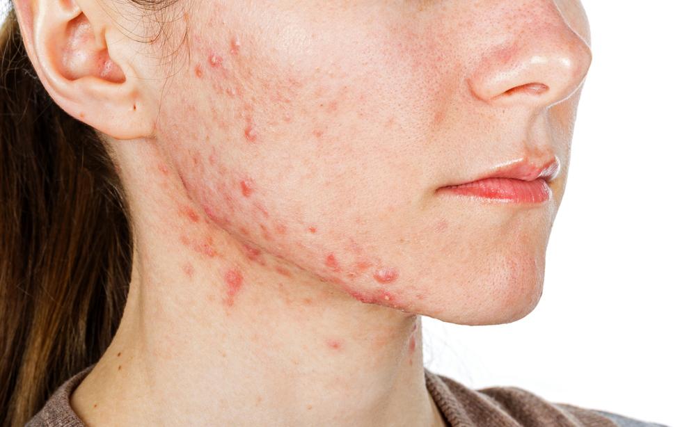 acne: vediamo insieme allo specialista quali sono i rimedi per l'acne