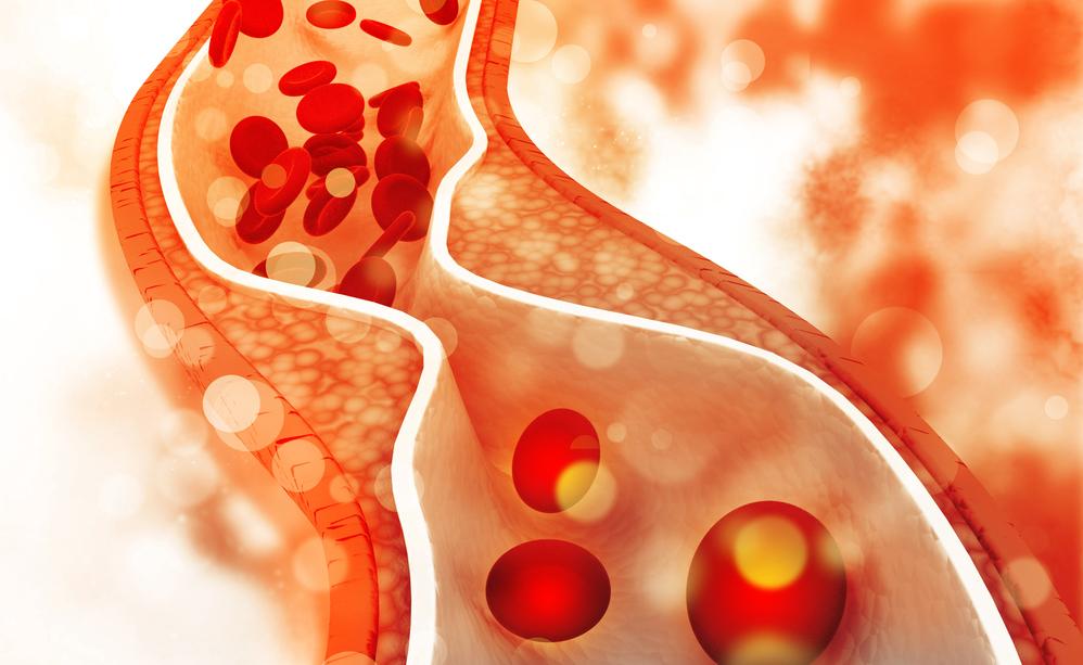 colesterolo alto: i rischi dell'interruzione della cura