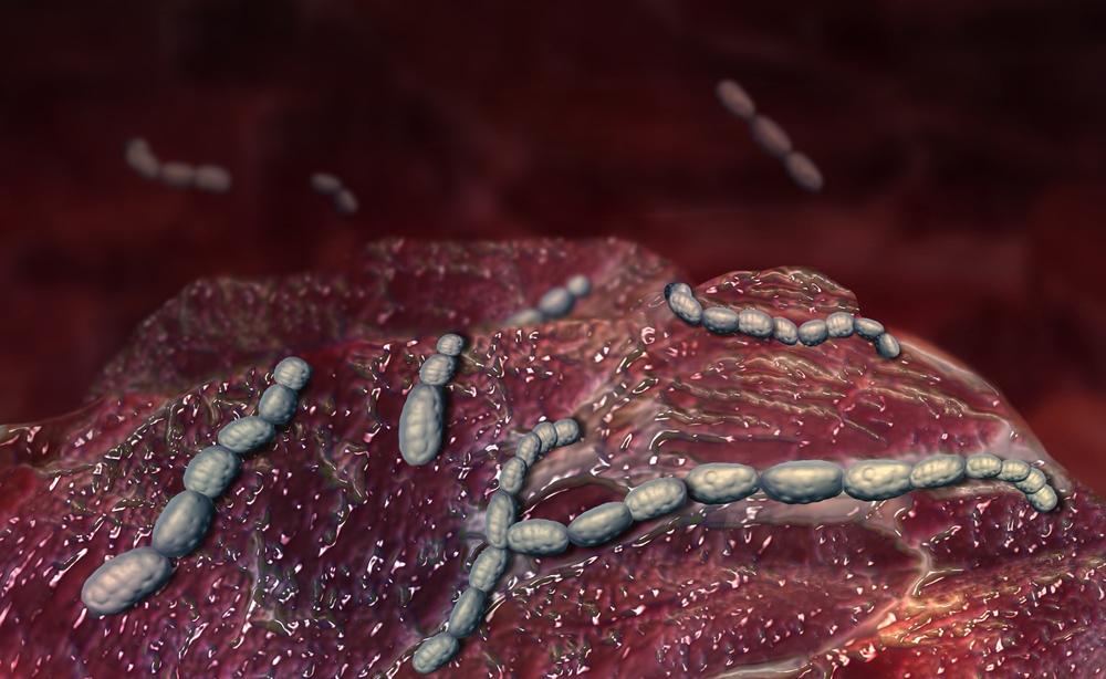 scarlattina: i sintomi della malattia