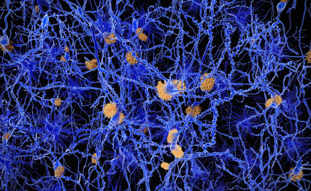 alzheimer: 10 sintomi più comuni