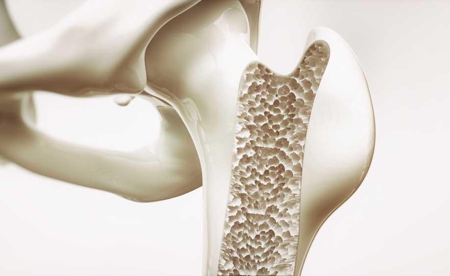 osteoporosi: gli alimenti consigliati per prevenire le fratture ossee
