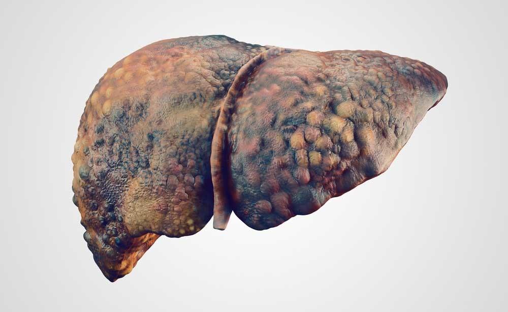 fegato grasso: le cause legate all'alimentazione