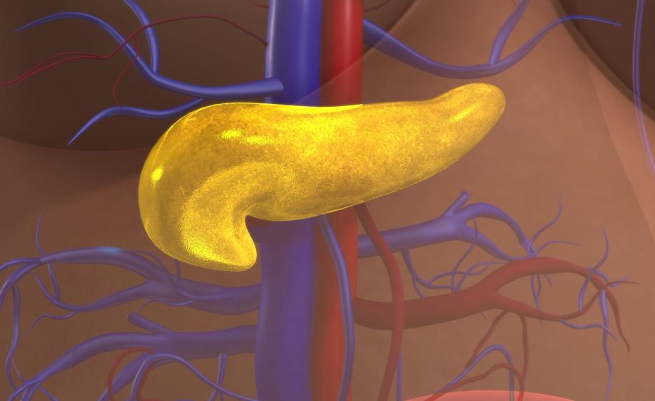 cancro al pancreas: perché non è semplice da curare
