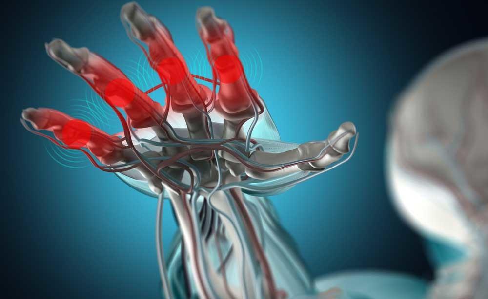 artrite: la dieta per combatterla